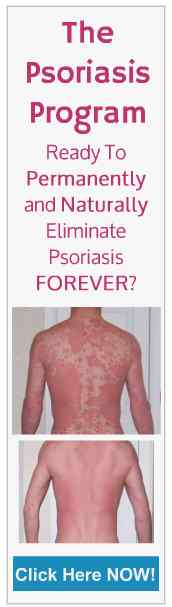 The Psoriasis Program - Permanently and naturally eliminate psoriasis
