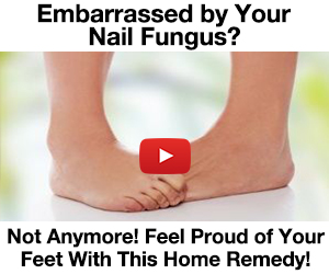 Embarrassed by your nail fungus