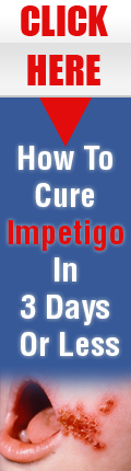 How to cure impetigo in 5 days or less