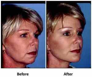 Facelift without surgery - before and after