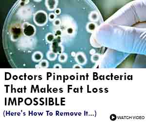 Doctors pinpoint bacteria that makes you fat